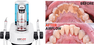 EMS Airflow Dental Spa